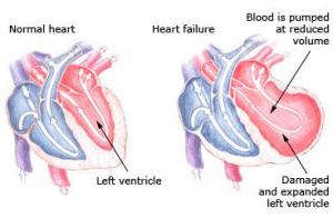 Heart Failure check up in bani park