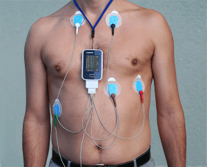 holter check up facilities in rajasthan